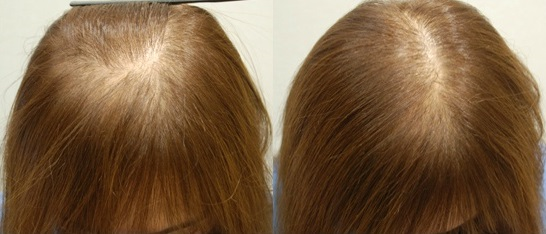 エンジェルリリアンプラスの効果は本当?口コミで話題の産後ママ専用育毛剤が本当に髪の毛が増えると話題!