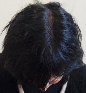 haru 黒髪スカルププロの効果は本当?口コミで話題のシャンプーの白髪や抜け毛への効果とは