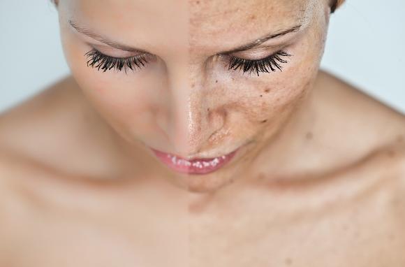 美白美容液エルシーノの口コミと効果は本当?美白化粧品としてブログなどで話題のエルシーノの美白力とは