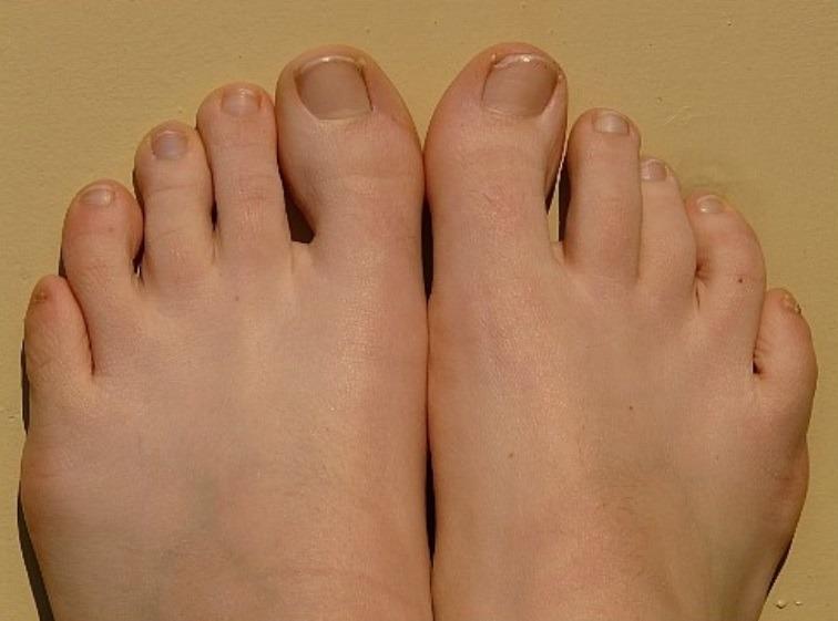 クリアネイルショットは爪水虫に効果的?口コミで話題の足の爪のガタガタを綺麗に治すクリアネイルショットとは